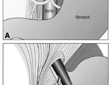 EUS transgastric gastropexy