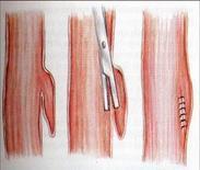 Uso di stapler transorale
