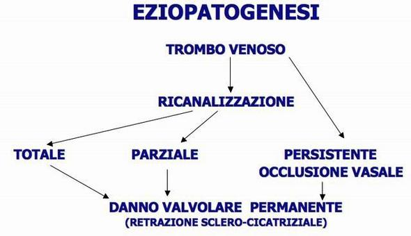 Sindrome post-flebitica