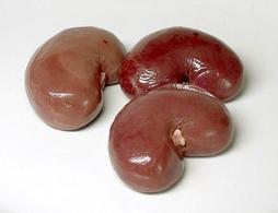 Colonna renale. Fonte: Wikipedia.