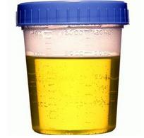 Campione di urine di cane in contenitore sterile.