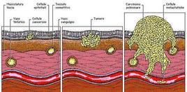 Schema rappresentante le diverse fasi di formazione di un tumore.