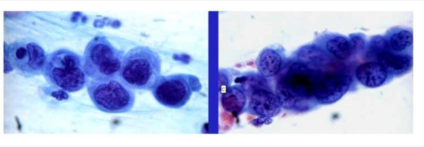 Tumori epiteliali. Aggregati di cellule con caratteri di malignità a formare grappoli.