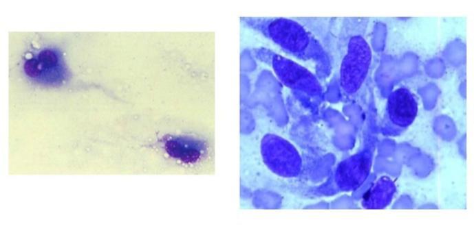 Tumori a cellule fusate.