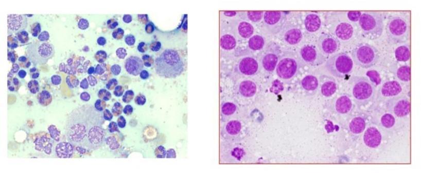 Tumori a cellule discrete.