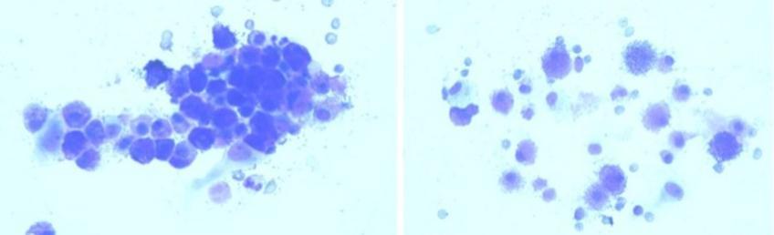 Presenza di cellule tonde con granuli intracitoplasmatici