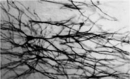 """Immagine di tessuto nervoso. Fonte: V. Guglielmotti, Istituto di Cibernetica """"E:R: Caianiello"""", CNR"""