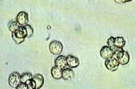 Leucociti urinari