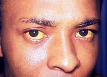 colorazione gialla delle sclere