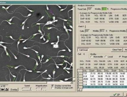 Videomicrografia computerizzata.