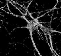 Contatti sinaptici