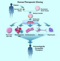 Clonazione terapeutica