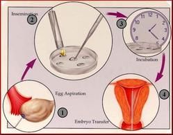 Procreazione in vitro
