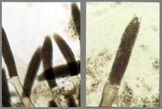 Saprolegnia sp. In spigola. Micro (foto Prof. G. De Vico).
