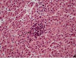 Trota-microepatite linfocitaria: cluster di linfociti nel parenchima epatico (freccia). Fonte: prof. G. De Vico.