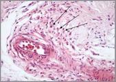 Cellule granulari eosinofiliche.