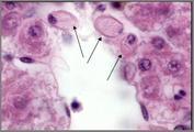 Rodlet cells.