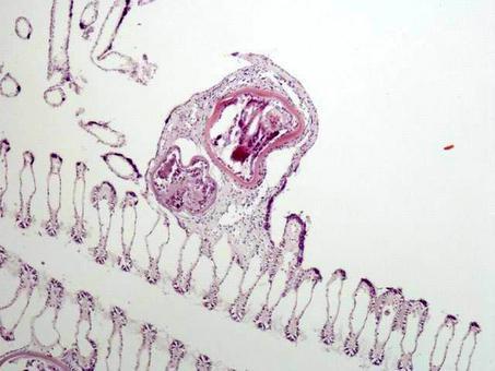 Mytilus, Branchia: lesione simil-granulomatosa accerchiante una metacercaria. Foto del Prof. Gionata De Vico.