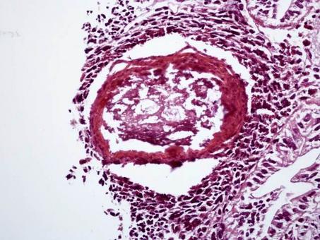 A. Pallipes: Lesione simil-granulomatosa da Cytrobacter sp. Foto del Prof. Gionata De Vico.