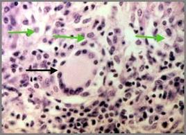 Granuloma Tubercolare: Cell. gigante tipo Langhans (freccia nera) e cell. Epitelioidi (frecce verdi). Foto del Prof. Gionata De Vico.