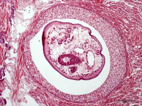Piede di Mollusco: Lesione parassitaria granuloma-like. Foto del Prof. Gionata De Vico.