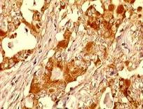 Cane, carcinoma mammario: molte  cellule producono VEGF. (foto Restucci B.)