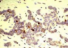 Tricoblastoma (comportamentp biologico benigno), cane: poche cellule cellule positive al MIB-1. (foto De Vico-Maiolino).