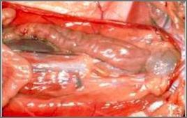 PBD: ispessimento della parete del colon che presenta evidenti presenze di pieghe.