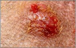 Modificazione della cute indotta da mastocitoma.