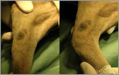 Flessione dell'articolazione tarso-metatarsica resa possibile dalla lacerazione della fibrocartilagine plantare.