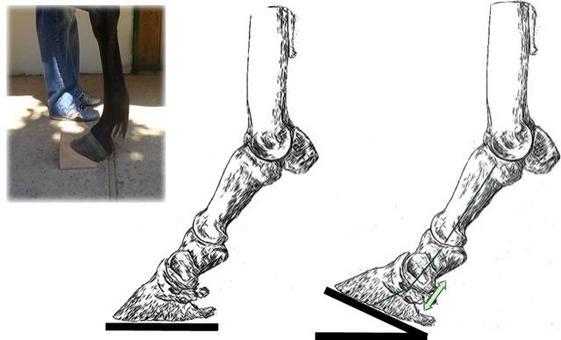 Cuneo con apice rivolto verso il tallone: sollecitazione del tendine flessore profondo delle falangi e della briglia carpica; compressione, per contiguità anatomica, da parte del flessore profondo, sulla borsa e sul navicolare.