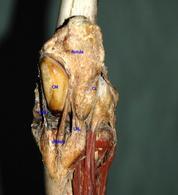 Ginocchio del cavallo con rotula in posizione agganciata sul condilo mediale (CM). CL- condilo laterale, LRM – leg. Rotuleo mediale, LRMed – leg. rotuleo mediano, LRL – leg. Rotuleo laterale.