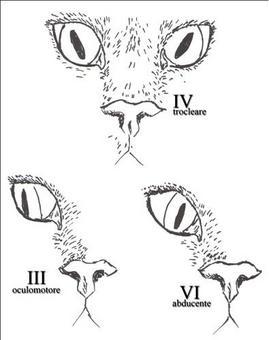 Posizione del globo oculare in esito ad affezioni neurologiche con coinvolgimento del IV, III o VI nervo cranico