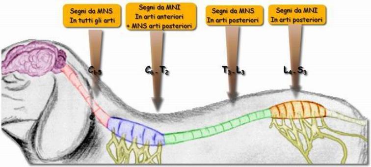 Localizzazione extracranica (midollo spinale).