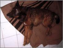 Postura di Shiff-Sherrington in esito a trauma spinale a localizzazione toracolombare.
