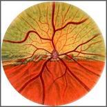Cane: Immagine schematica del fondo dell'occhio.