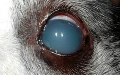 Opacizzazione diffusa della cornea in esito ad edema da sovradistensione: Glaucoma.