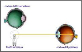 Disallineamento tra occhio dell'osservatore e fonte luminosa.