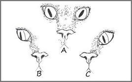 Posizione anomala del globo oculare in relazione ad alterata funzione dei nervi cranici: A) Trocleare; B) Oculomotore; C) Abducente.