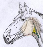 Definizione del triangolo di Viborg (in giallo). Limite anteriore: branca della mandibola. Limite inferiore: vena mascellare esterna. Limite posteriore: muscolo sternomandibolare.