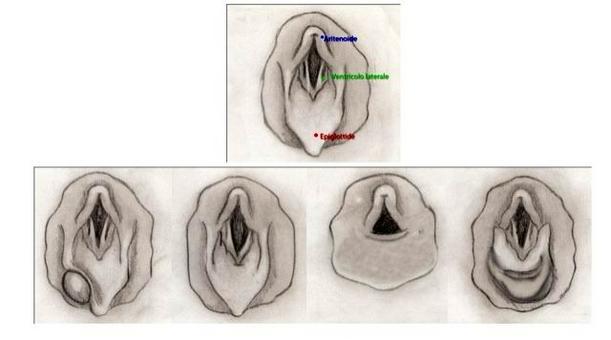 Cavallo: quadri più frequenti all'osservazione endoscopica del laringe: in alto laringe normale. In basso a partire da sinistra: cistisubepiglottidea; emiplegia laringea; dislocazione del palato molle; dislocazione delle pliche ariepiglottiche.