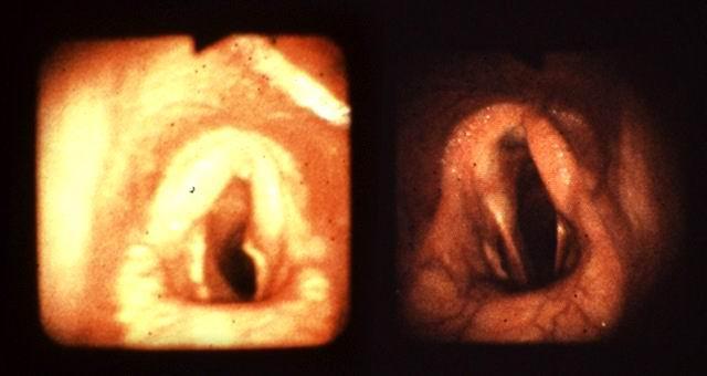 Due casi di emiplegia laringea: si noti l'asimmetria dovuta alla insufficiente abduzione dell'aritenoide.
