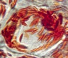 Cromoplasti nell'epidermide di un peperone rosso. Fonte: Madscientist