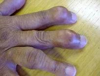 Artrite. Fonte: Arthiritis