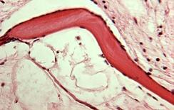 Tessuto osseo non cellulare