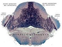 Sezione trasversale del cervelletto e midollo allungato di N. furzeri. Si ringrazia la dott. L. D'Angelo per la foto