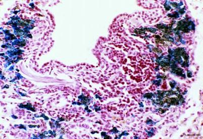 Diagnosi microscopica. Immagine tratta dalla tesi di dottorato di O. Paciello