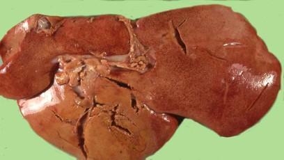 Diagnosi macroscopica