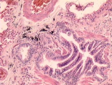 Accumuli di polvere peribronchiale e aspetto festonato dei lumi con desquamazione degli epiteli. E.E.