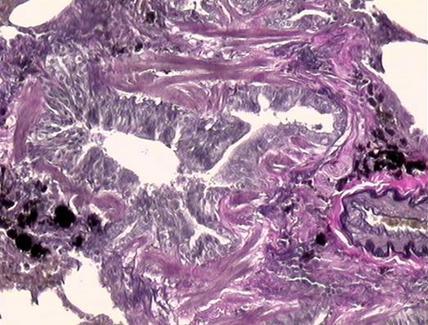 Intensa proliferazione di tessuto connettivo peribronchiale. V.V.G